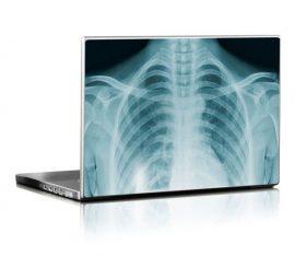 Átlátszó laptopmatrica